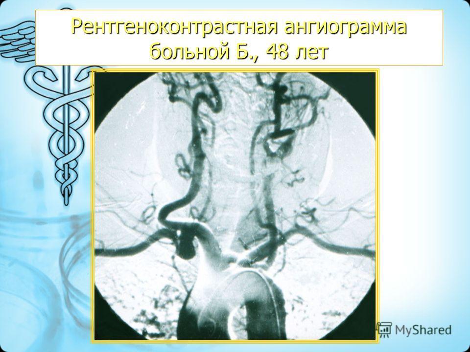 Рентгеноконтрастная ангиограмма больной Б., 48 лет