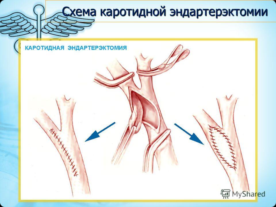 Схема каротидной эндартерэктомии