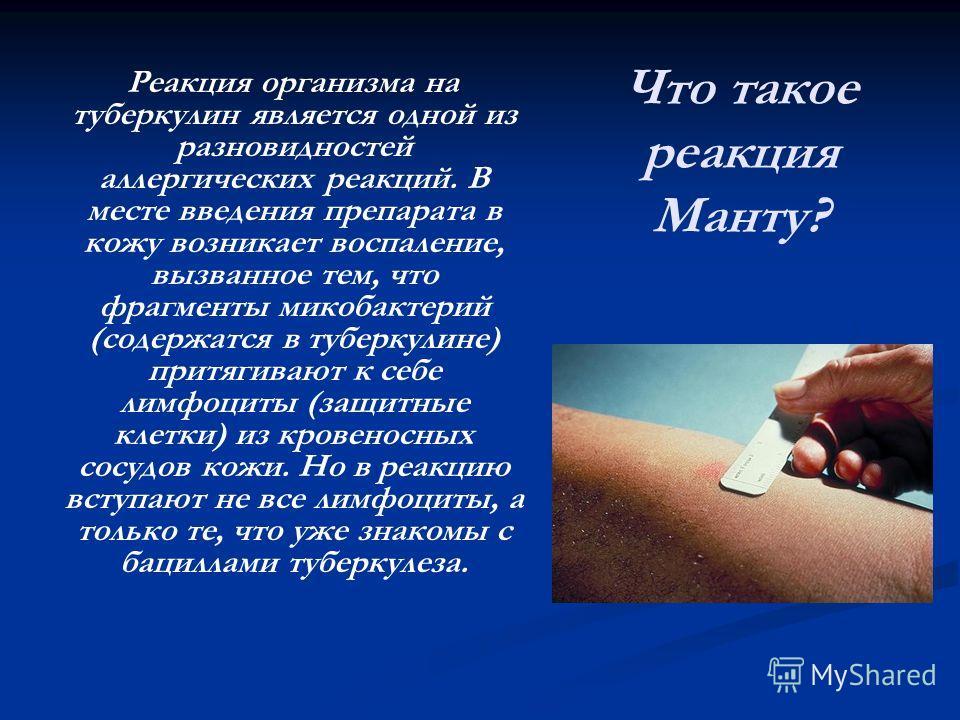 Что такое реакция Манту? Реакция организма на туберкулин является одной из разновидностей аллергических реакций. В месте введения препарата в кожу возникает воспаление, вызванное тем, что фрагменты микобактерий (содержатся в туберкулине) притягивают