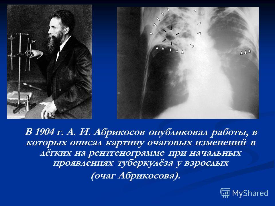 В 1904 г. А. И. Абрикосов опубликовал работы, в которых описал картину очаговых изменений в лёгких на рентгенограмме при начальных проявлениях туберкулёза у взрослых (очаг Абрикосова).