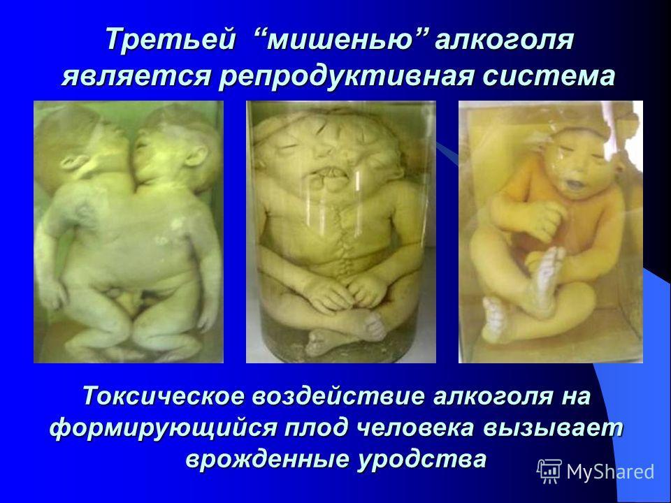 Третьей мишенью алкоголя является репродуктивная система Токсическое воздействие алкоголя на формирующийся плод человека вызывает врожденные уродства