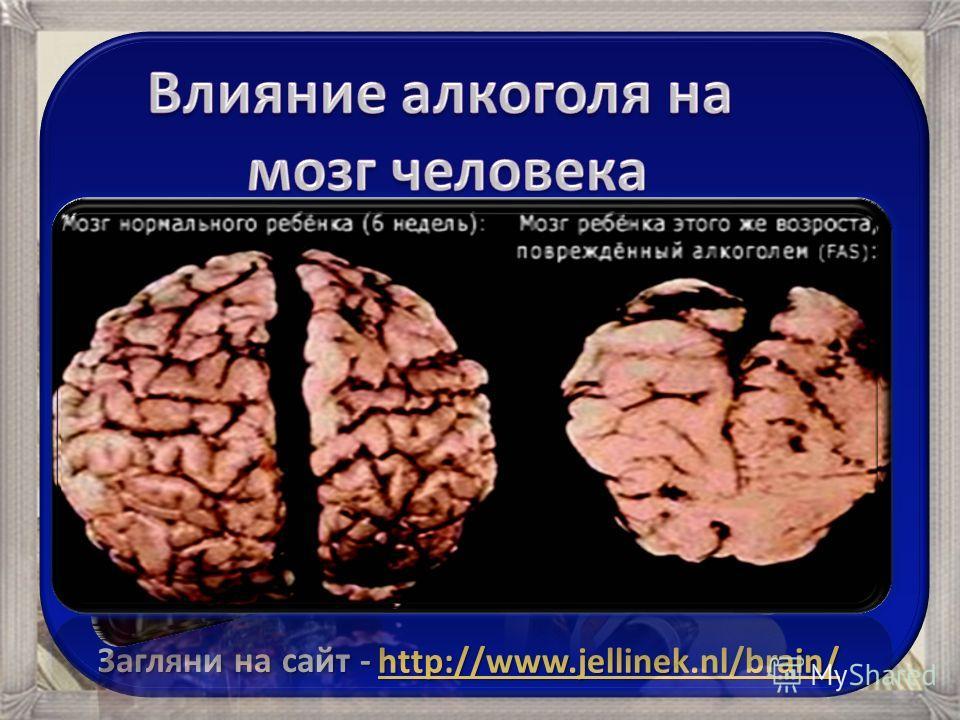 jellinek nl brain