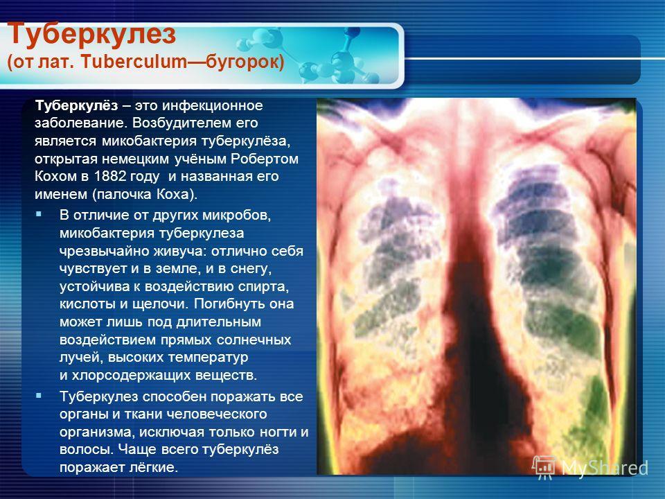 Туберкулез (от лат. Tuberculumбугорок) Туберкулёз – это инфекционное заболевание. Возбудителем его является микобактерия туберкулёза, открытая немецким учёным Робертом Кохом в 1882 году и названная его именем (палочка Коха). В отличие от других микро