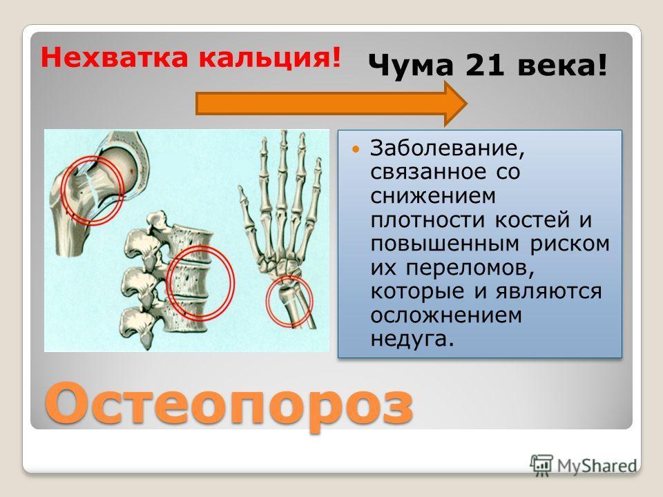 Остеопороз Нехватка кальция! Чума 21 века! Заболевание, связанное со снижением плотности костей и повышенным риском их переломов, которые и являются осложнением недуга.