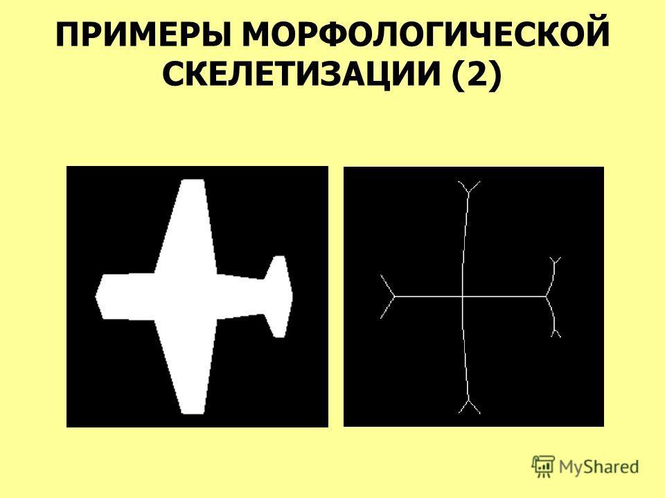 ПРИМЕРЫ МОРФОЛОГИЧЕСКОЙ СКЕЛЕТИЗАЦИИ (2)