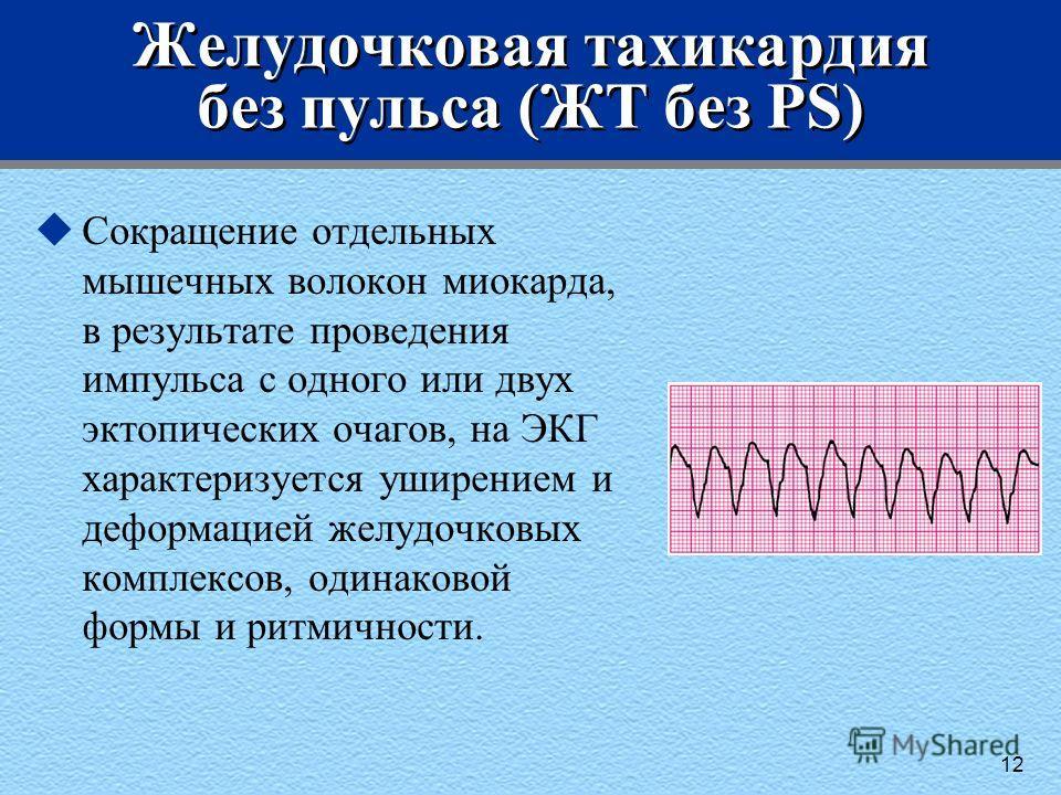 Желудочковая тахикардия без пульса (ЖТ без PS) uСокращение отдельных мышечных волокон миокарда, в результате проведения импульса с одного или двух эктопических очагов, на ЭКГ характеризуется уширением и деформацией желудочковых комплексов, одинаковой