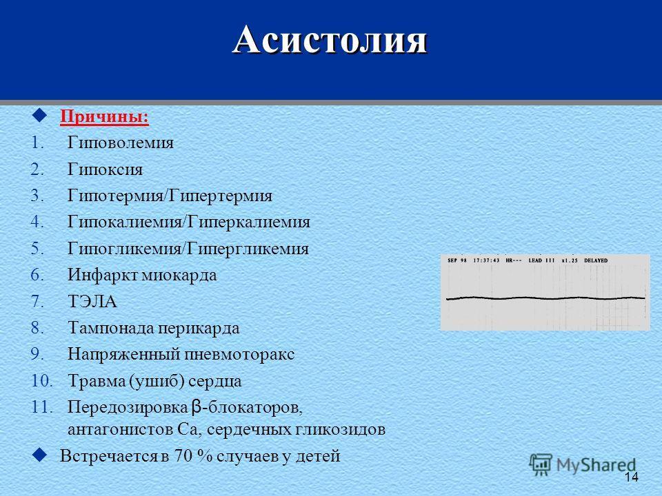 Асистолия uПричины: 1.Гиповолемия 2.Гипоксия 3.Гипотермия/Гипертермия 4.Гипокалиемия/Гиперкалиемия 5.Гипогликемия/Гипергликемия 6.Инфаркт миокарда 7.ТЭЛА 8.Тампонада перикарда 9.Напряженный пневмоторакс 10.Травма (ушиб) сердца 11.Передозировка β -бло