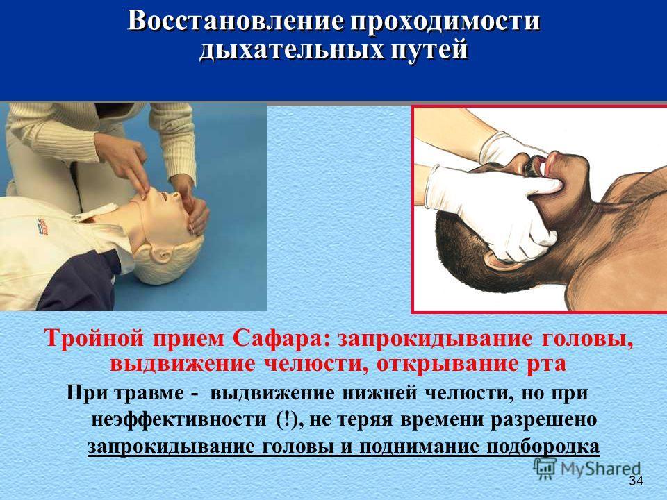 34 Восстановление проходимости дыхательных путей При травме - выдвижение нижней челюсти, но при неэффективности (!), не теряя времени разрешено запрокидывание головы и поднимание подбородка Тройной прием Сафара: запрокидывание головы, выдвижение челю