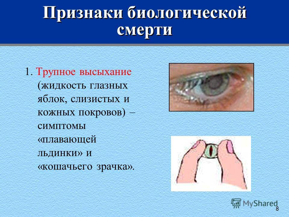 Признаки биологической смерти 1. Трупное высыхание (жидкость глазных яблок, слизистых и кожных покровов) – симптомы «плавающей льдинки» и «кошачьего зрачка». 8