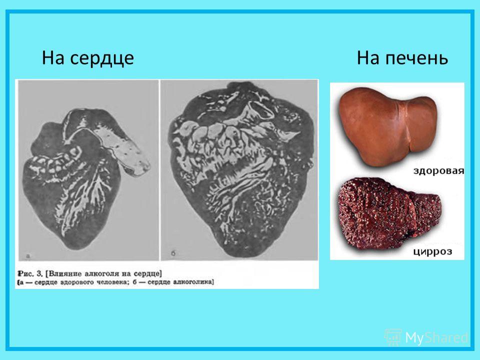 На сердце На печень