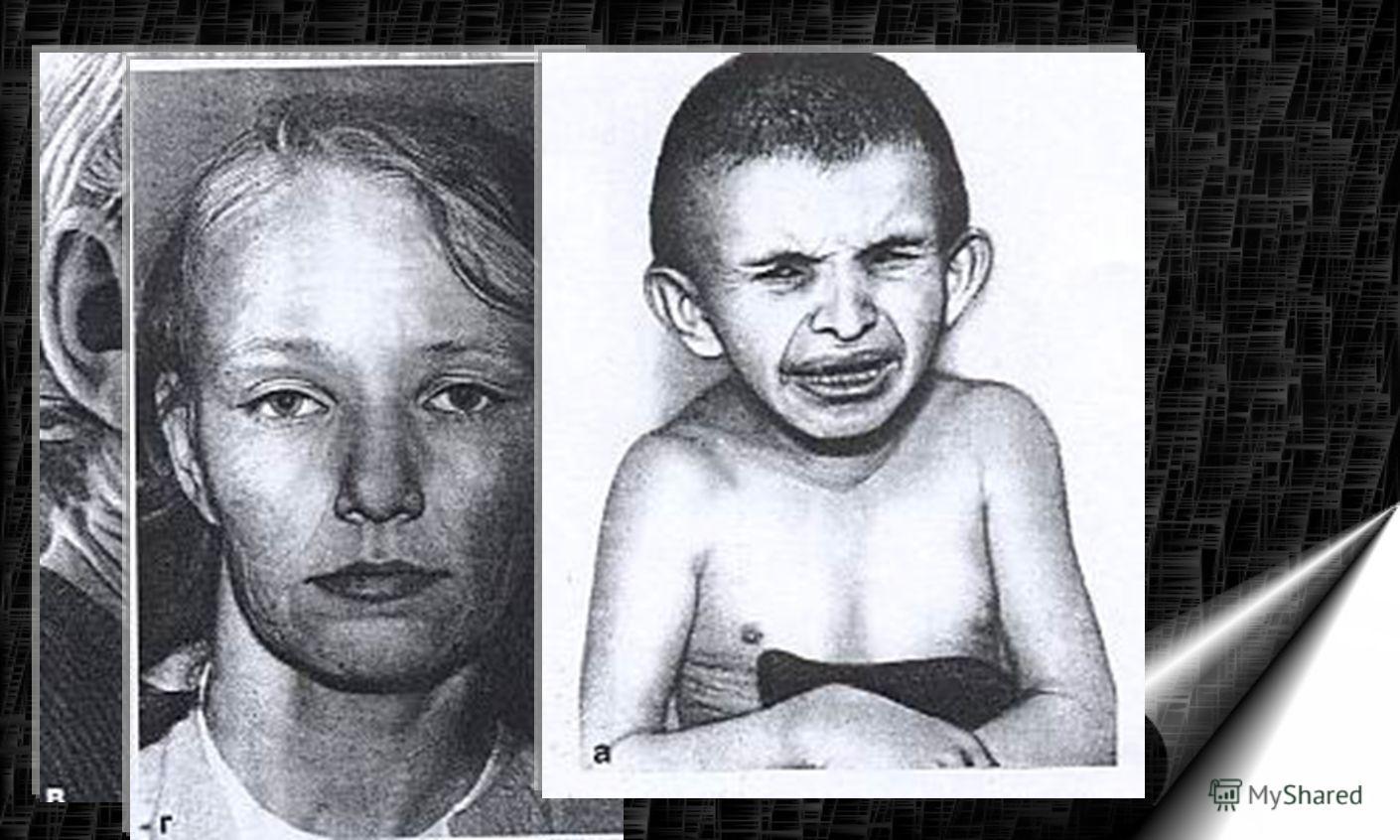 Американские исследователи обнаружили, что причиной «детской старости» или прогерии Хатчинсона- Гилфорда является лишь одиночная мутация. Причиной болезни является точечная мутация – при этом в молекуле ДНК изменен лишь один нуклеотид.– Болезнь не яв