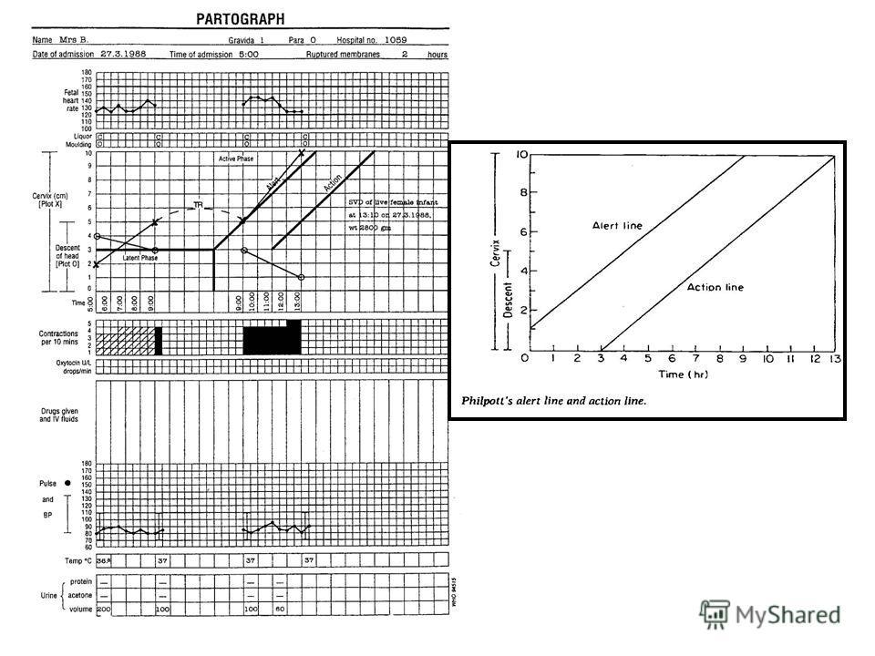 партограмма в акушерстве образец