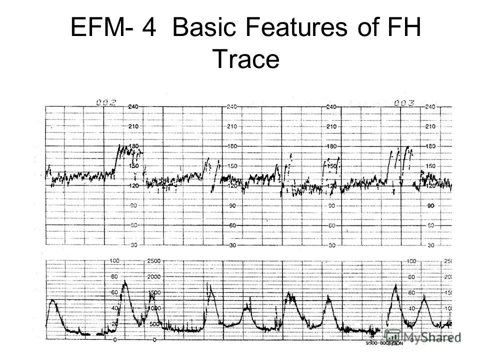 EFM- 4 Basic Features of FH Trace