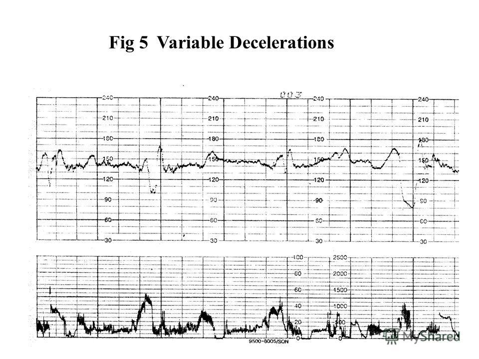 Fig 5Variable Decelerations