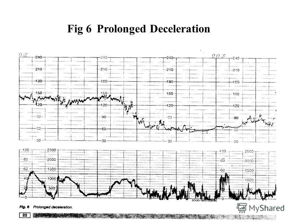Fig 6 Prolonged Deceleration