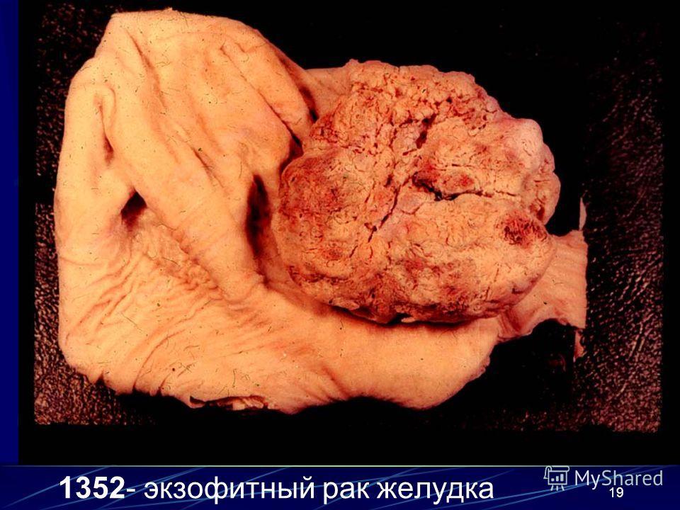 19 1352- экзофитный рак желудка
