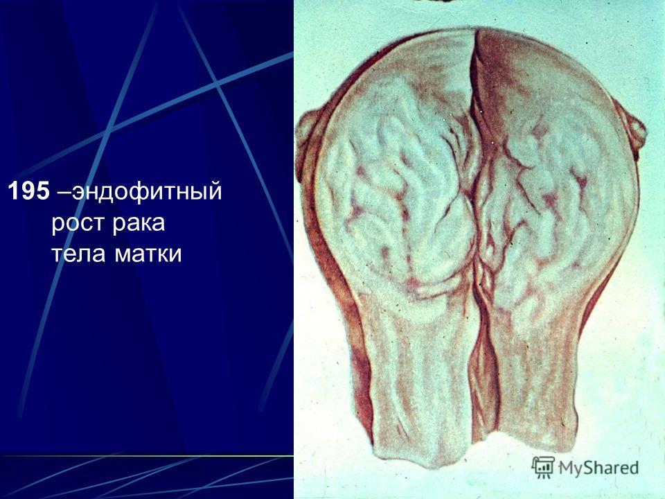 21 195 –эндофитный рост рака тела матки