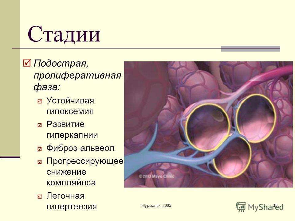 Мурманск, 200515 Стадии Подострая, пролиферативная фаза: Устойчивая гипоксемия Развитие гиперкапнии Фиброз альвеол Прогрессирующее снижение компляйнса Легочная гипертензия