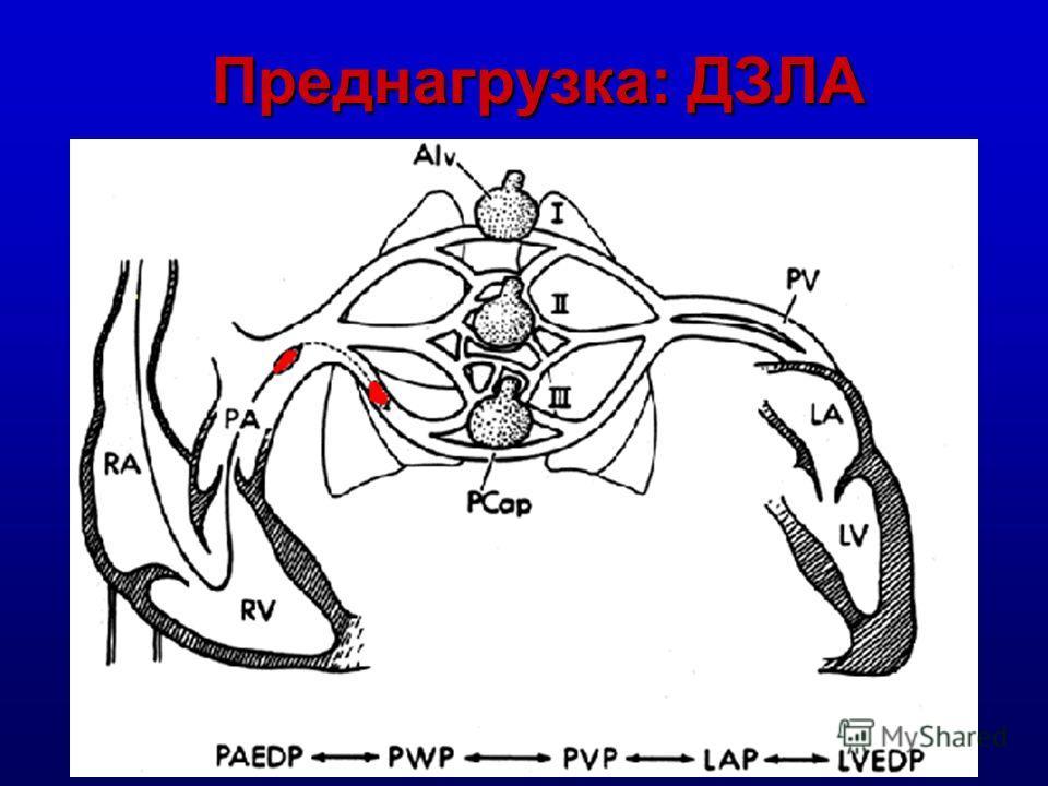 Преднагрузка (PRELOAD): эволюция понятия Венозный возврат (поток = МОК) Венозный возврат (поток = МОК) Давление заполнения (ЦВД и ДЗЛА) Давление заполнения (ЦВД и ДЗЛА) Конечно-диастолический объем Конечно-диастолический объем