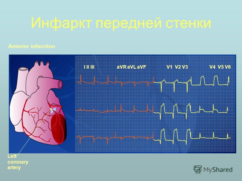 Инфаркт передней стенки Anterior infarction I II III aVR aVL aVFV1 V2 V3V4 V5 V6 Left coronary artery