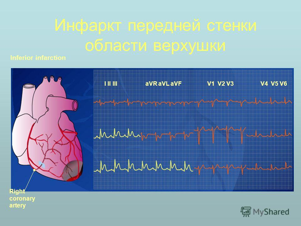Инфаркт передней стенки области верхушки Inferior infarction I II III aVR aVL aVFV1 V2 V3V4 V5 V6 Right coronary artery