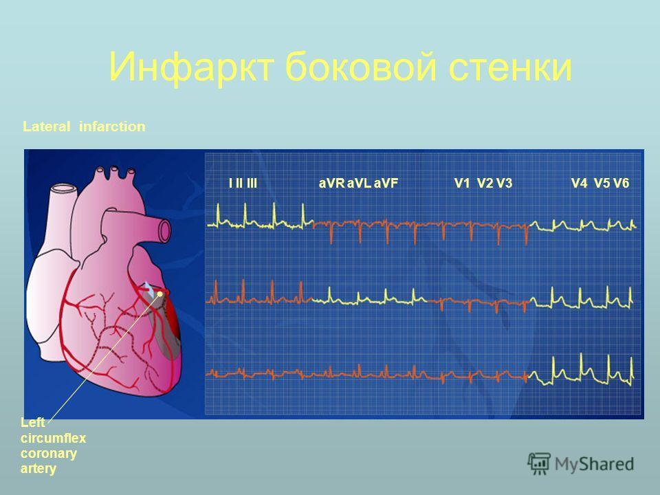 Инфаркт боковой стенки Lateral infarction I II III aVR aVL aVFV1 V2 V3V4 V5 V6 Left circumflex coronary artery