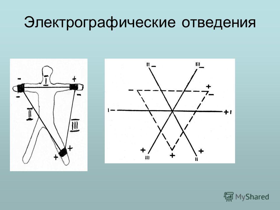 Электрографические отведения