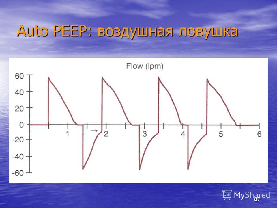 87 Auto PEEP: воздушная ловушка
