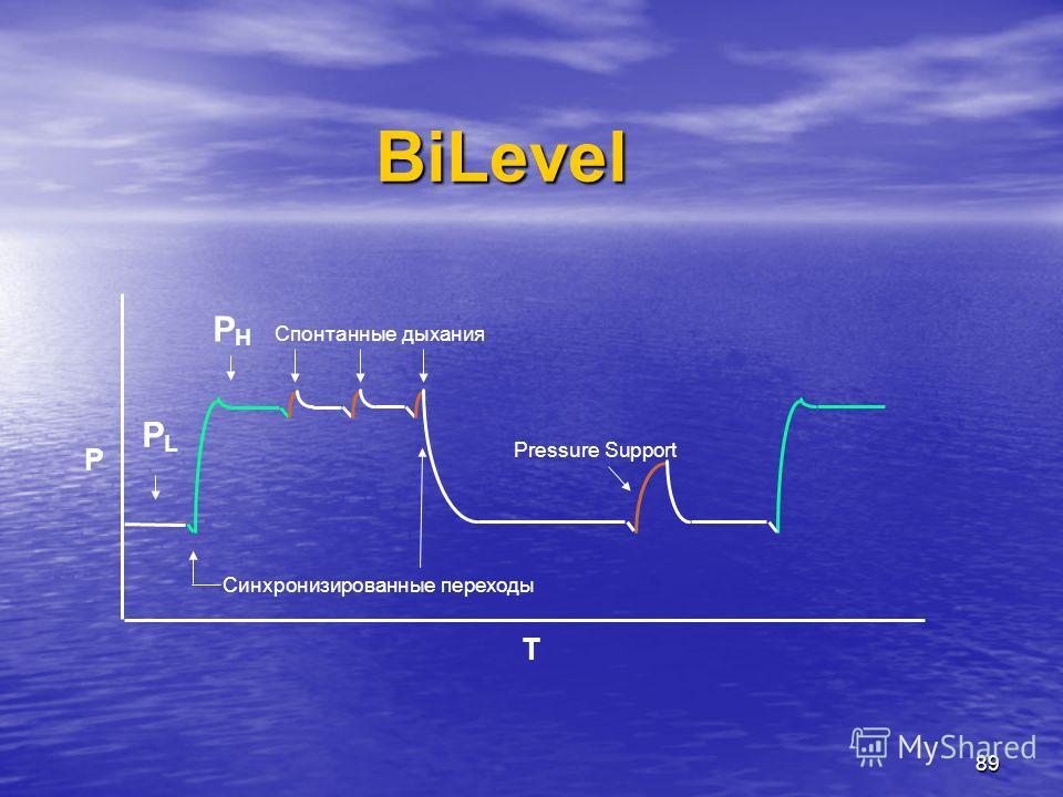 89 BiLevel Синхронизированные переходы Спонтанные дыхания P T Pressure Support PLPL PHPH