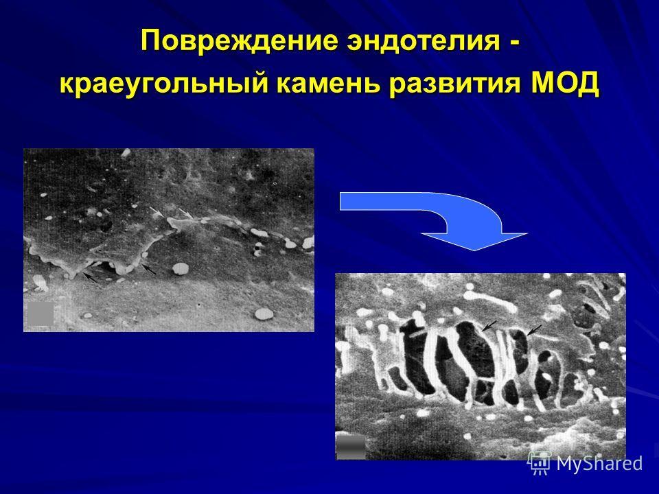 Повреждение эндотелия - краеугольный камень развития МОД
