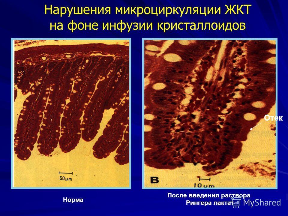 Нарушения микроциркуляции ЖКТ на фоне инфузии кристаллоидов Норма После введения раствора Рингера лактат Отек