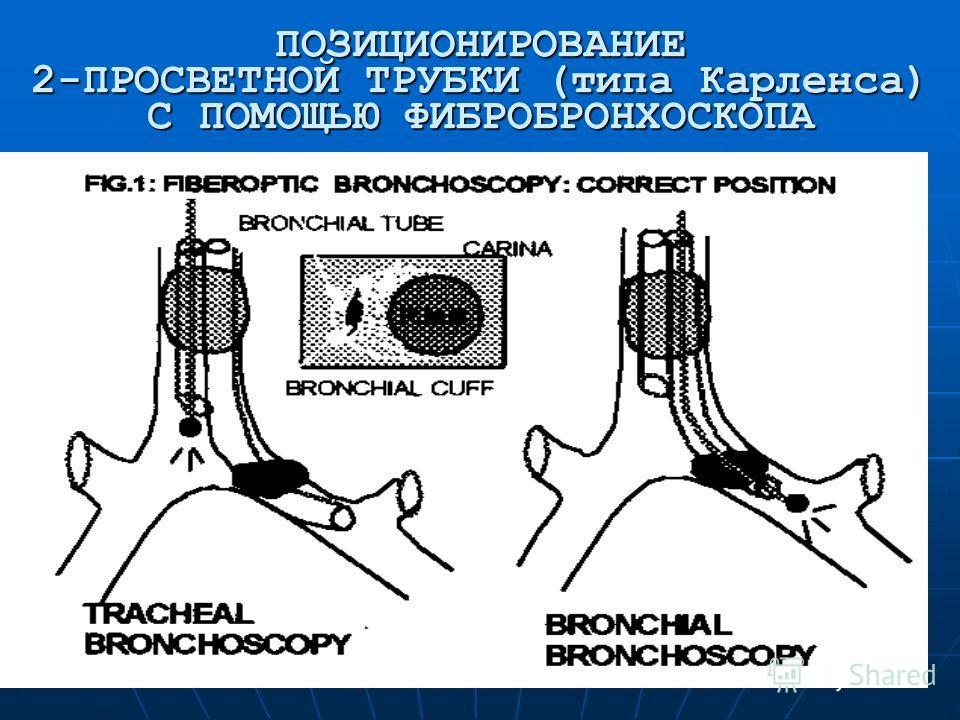 ПОЗИЦИОНИРОВАНИЕ 2-ПРОСВЕТНОЙ ТРУБКИ (типа Карленса) С ПОМОЩЬЮ ФИБРОБРОНХОСКОПА