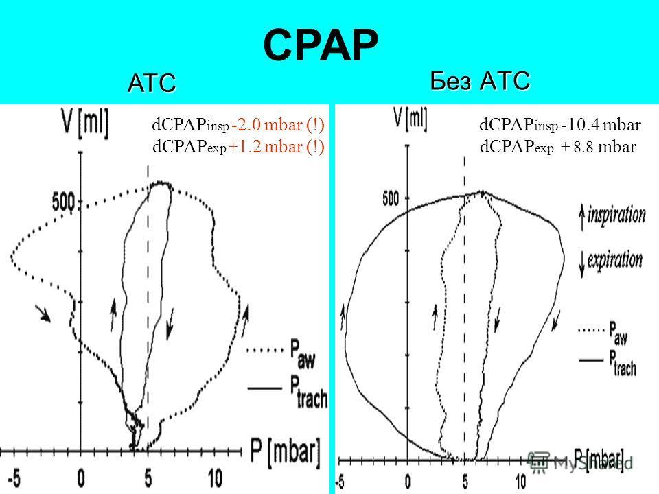 27 Без ATС ATС СPAP dCPAP insp -10.4 mbar dCPAP exp + 8.8 mbar dCPAP i nsp -2.0 mbar (!) dCPAP exp + 1.2 mbar (!)
