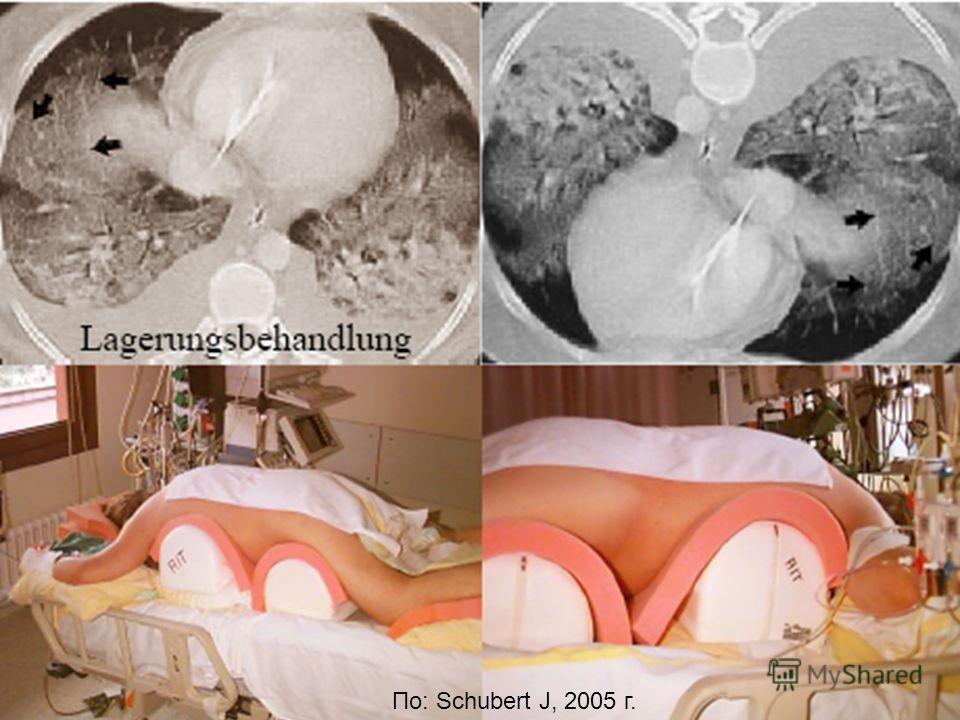 29 По: Schubert J, 2005 г.