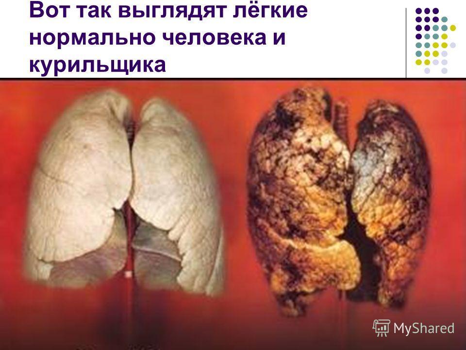 Вот так выглядят лёгкие нормально человека и курильщика
