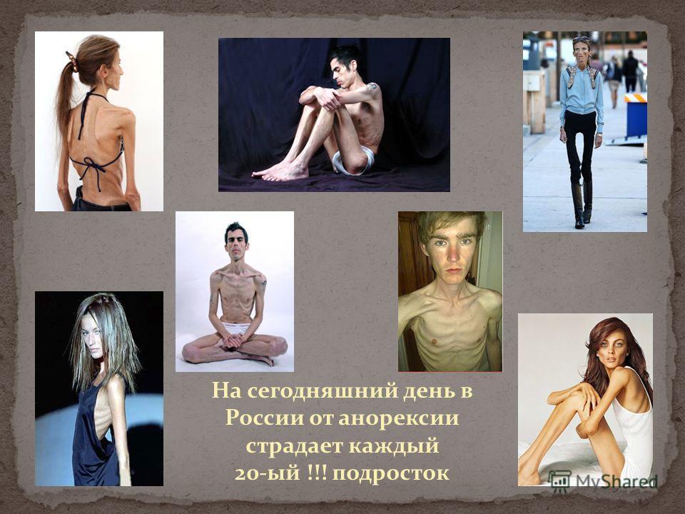 На сегодняшний день в России от анорексии страдает каждый 20-ый !!! подросток