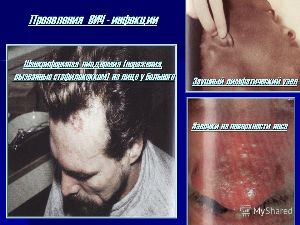 Проявления ВИЧ - инфекции Заушный лимфатический узел Язвочки на поверхности носа Шанкриформная пиодермия (поражения, вызванные стафилококком) на лице у больного вызванные стафилококком) на лице у больного