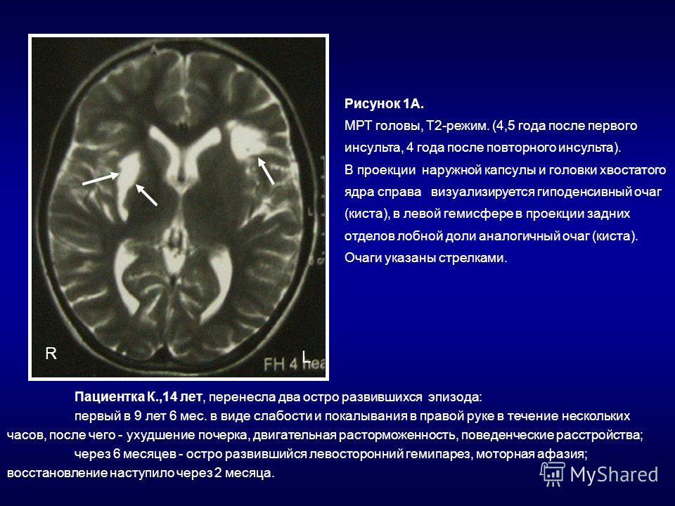 Рисунок 1А. МРТ головы, Т2-режим. (4,5 года после первого инсульта, 4 года после повторного инсульта). В проекции наружной капсулы и головки хвостатого ядра справа визуализируется гиподенсивный очаг (киста), в левой гемисфере в проекции задних отдело