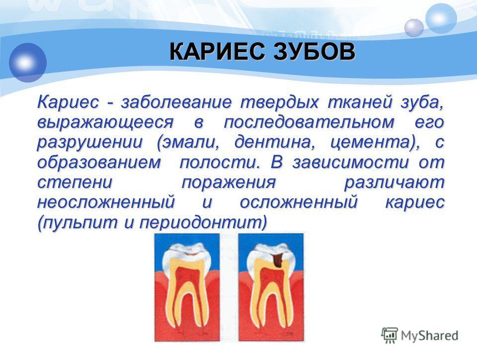 КАРИЕС ЗУБОВ Кариес - заболевание твердых тканей зуба, выражающееся в последовательном его разрушении (эмали, дентина, цемента), с образованием полости. В зависимости от степени поражения различают неосложненный и осложненный кариес (пульпит и период