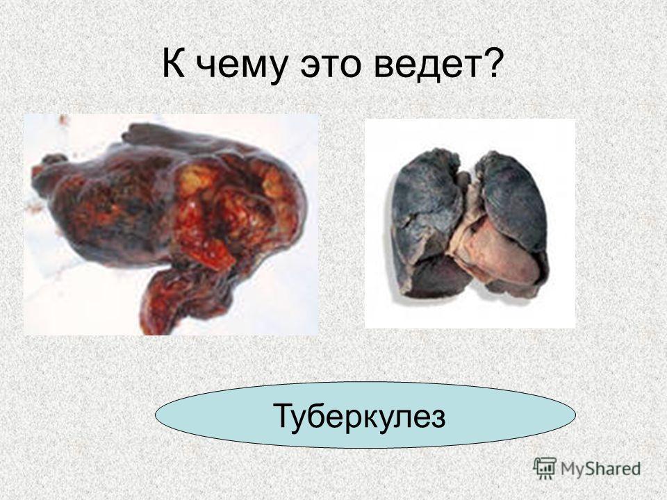 К чему это ведет? Туберкулез