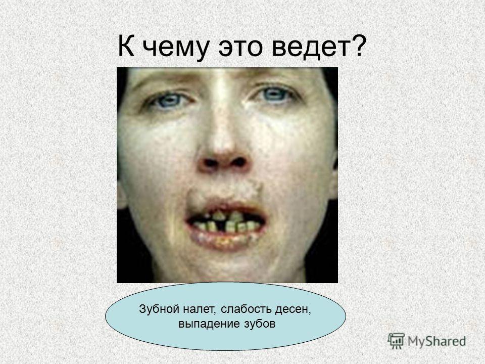 К чему это ведет? Зубной налет, слабость десен, выпадение зубов