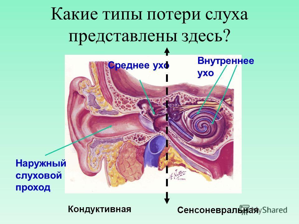 Какие типы потери слуха представлены здесь? Кондуктивная Сенсоневральная Наружный слуховой проход Среднее ухо Внутреннее ухо