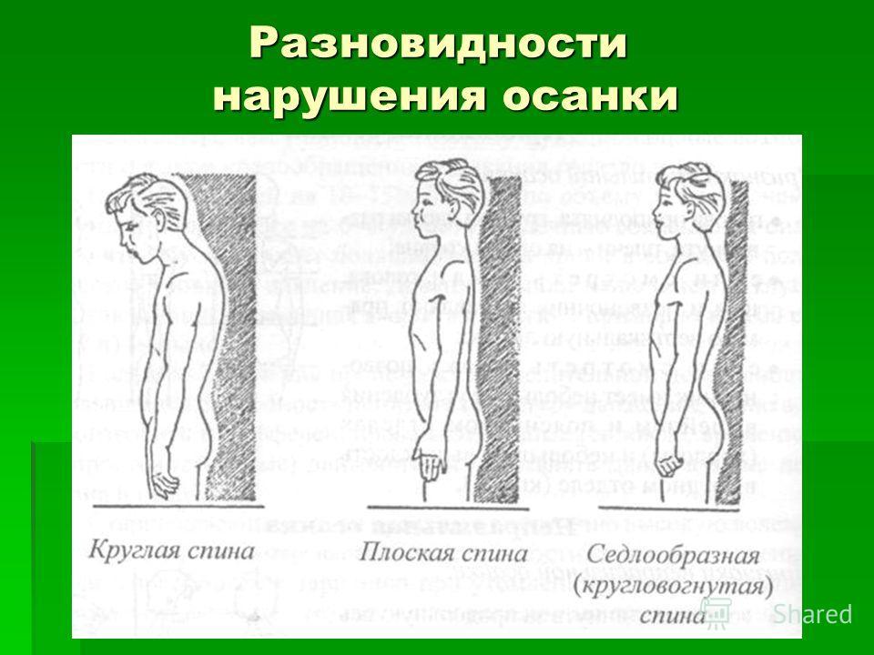 Как сделать спину ровной и не сутулится