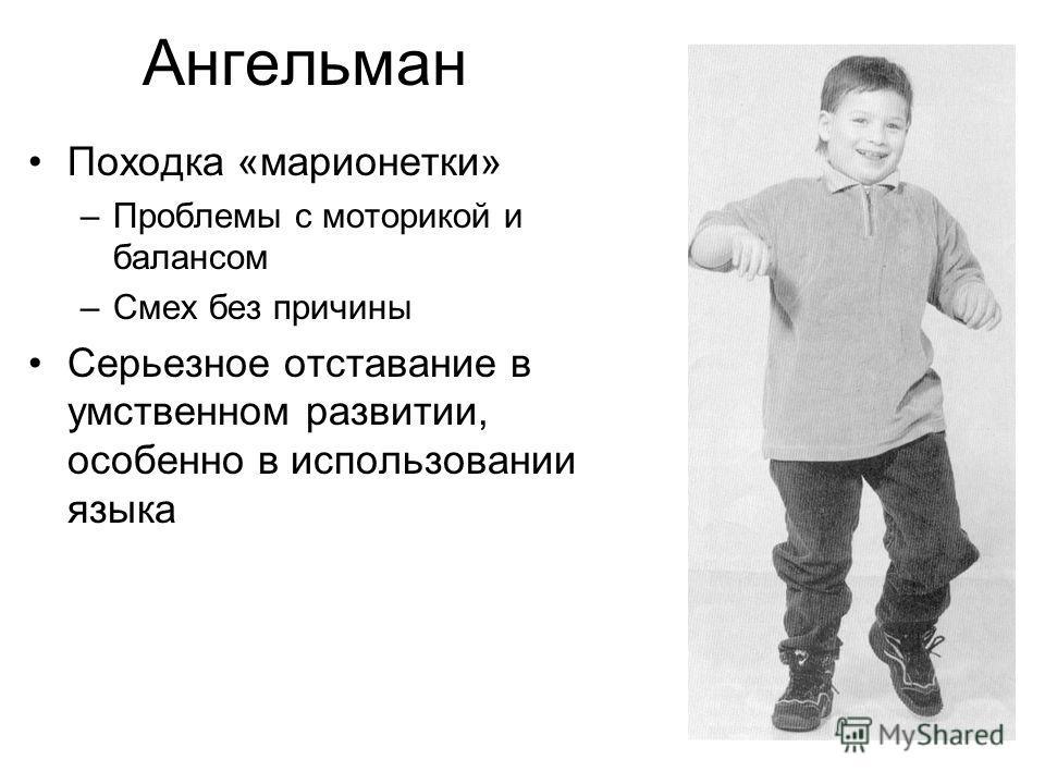 Ангельман Походка «марионетки» –Проблемы с моторикой и балансом –Смех без причины Серьезное отставание в умственном развитии, особенно в использовании языка