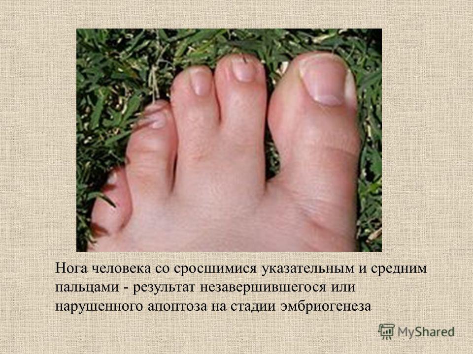 Нога человека со сросшимися указательным и средним пальцами - результат незавершившегося или нарушенного апоптоза на стадии эмбриогенеза