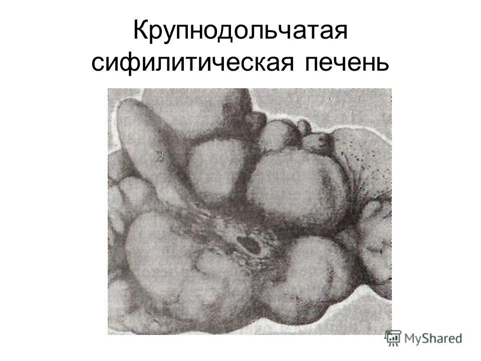 Крупнодольчатая сифилитическая печень
