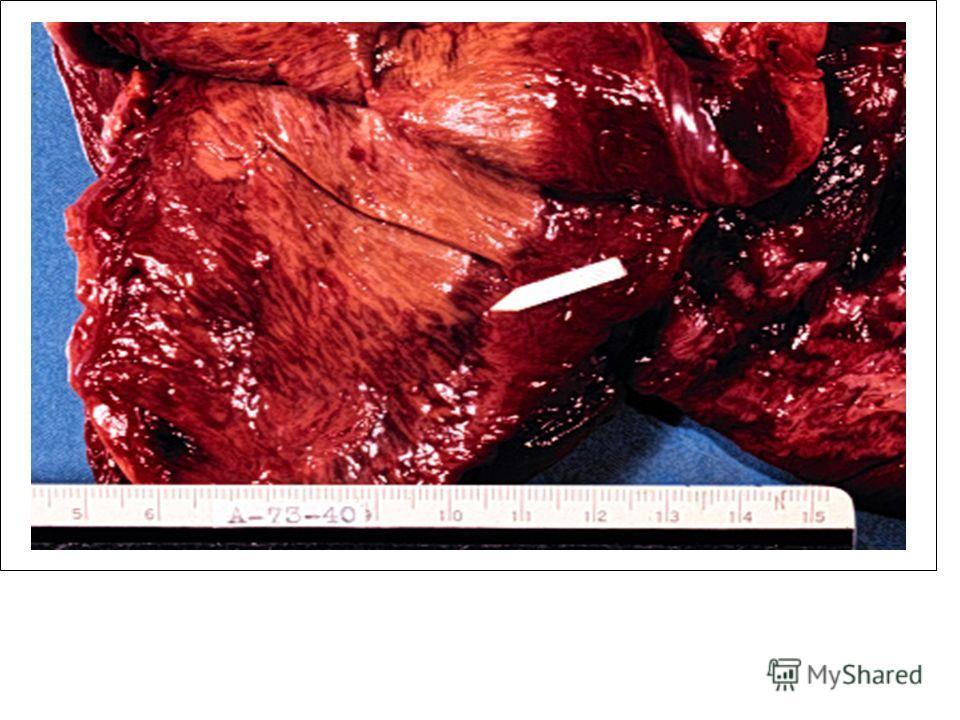 Массивное поражение септы, давность ОИМ 1 неделя. Reproduced by kind permission of Drs McLay & Johnson -Tulane School of Medicine