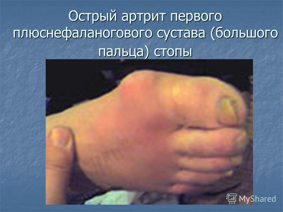 Острый артрит первого плюснефаланогового сустава (большого пальца) стопы