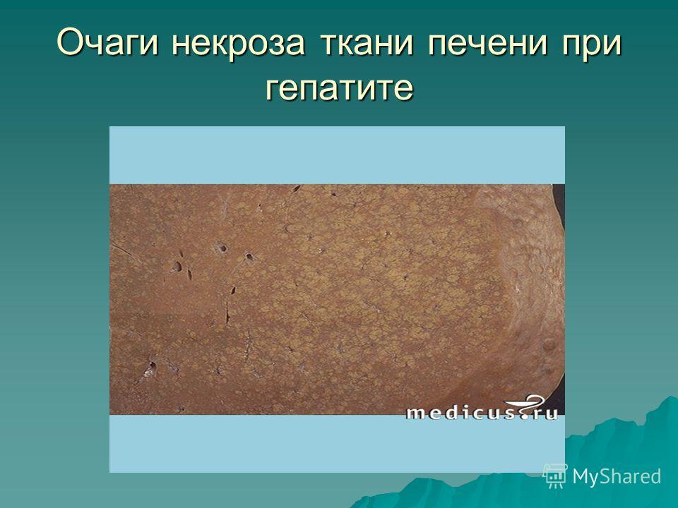Очаги некроза ткани печени при гепатите