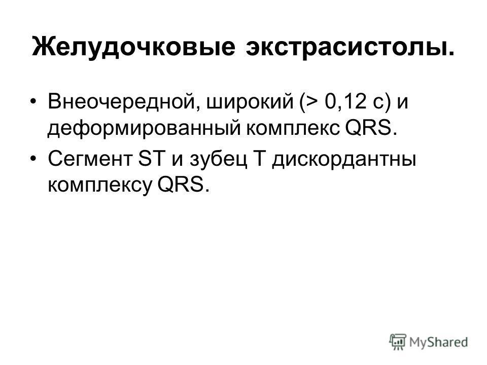 Желудочковые экстрасистолы. Внеочередной, широкий (> 0,12 с) и деформированный комплекс QRS. Сегмент ST и зубец T дискордантны комплексу QRS.